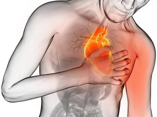 Secuelas de angina de pecho sintomas