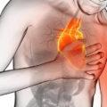 infarto-mujer-sintomas