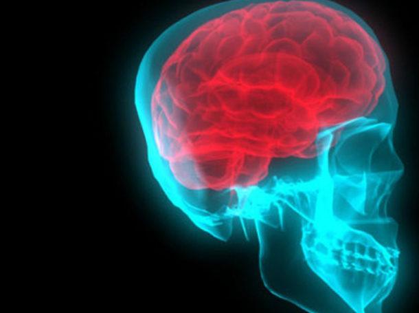 crebro-cabeza-neurologico